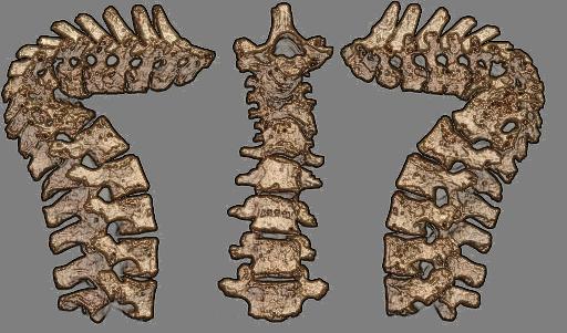 Spinal TB_mono